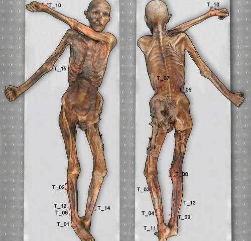 Oetzi Mummy