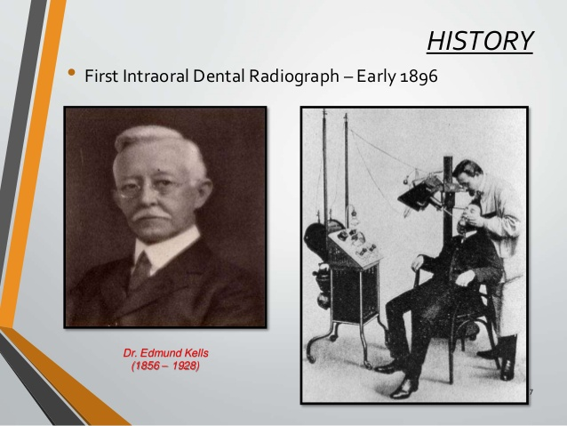 1st Dental X-Ray